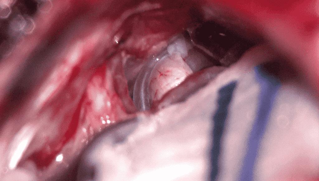 Neuralgia-del-trigémino