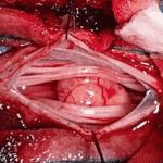 Tumores-de-columna