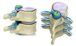Prolapse-of-intervertebral