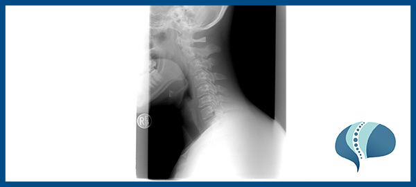 operación de hernia discal cervical